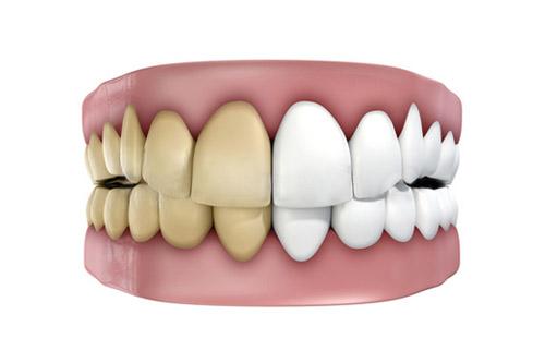 Blanqueamiento dental antes y después