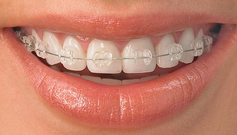 Ortodoncia de Zafiro